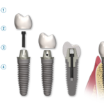 Implantology is one of the dental courses provided by GUIDE from SSCDS