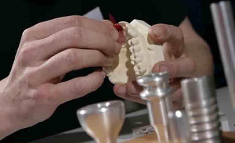 Implant prosthothesis
